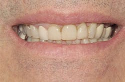 Veneer/Anterior Bridge Makeover, Before Treatment