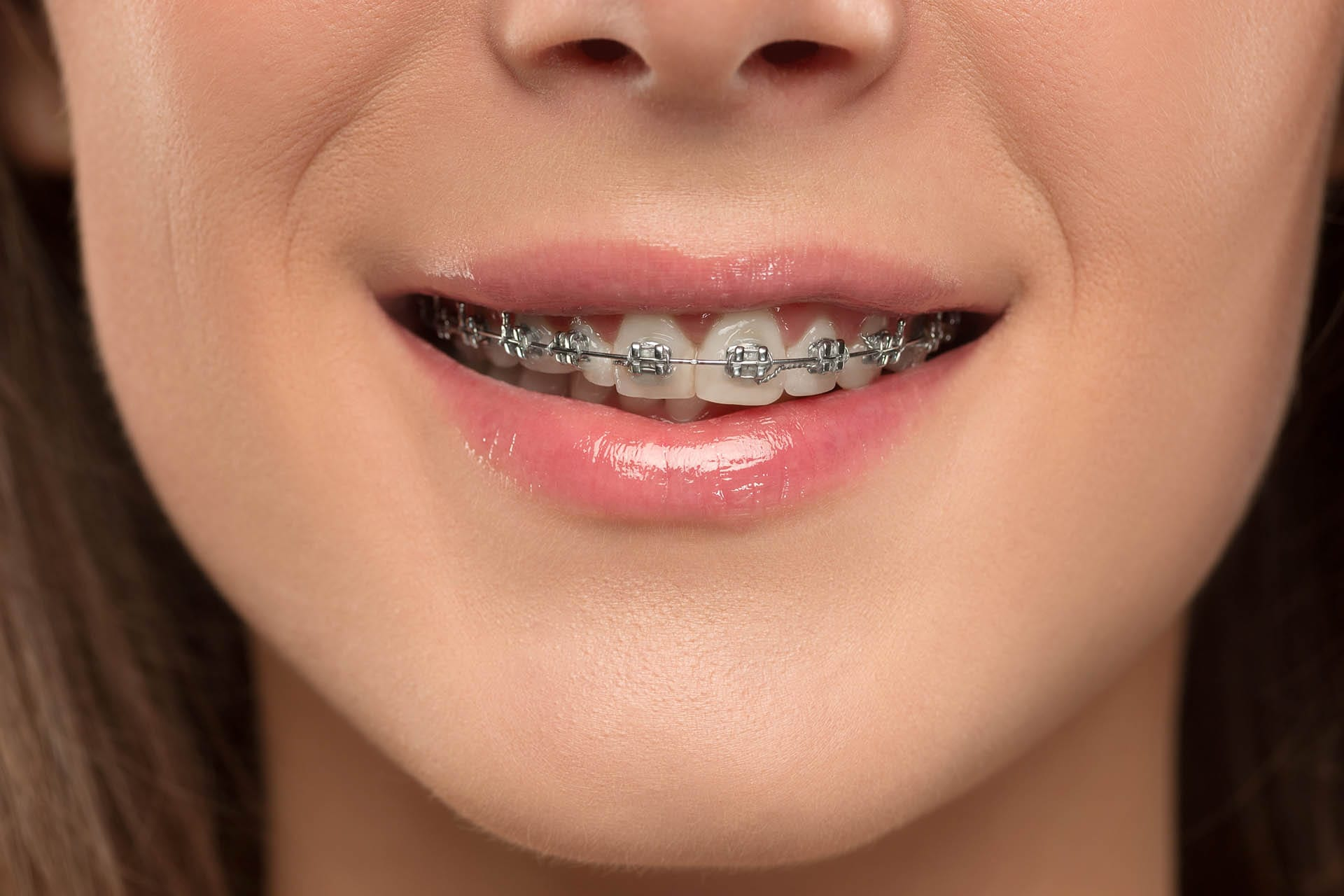 Teen girl wearing braces, a form of orthodontics